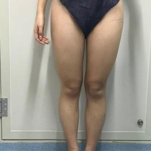 大腿小腿吸脂