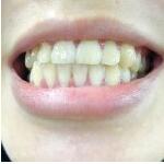 我以前不怎么注意牙齿问题,看到同学洗完牙好干净奥~~在悦美上看到维美的超...