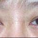 心路历程我因为皮松了所以做的外切我是1月17日做的外切眼袋,当时左眼在缝合时发现有出血又拆天重新处理的,...