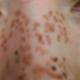 心路历程我,一个有二十年斑龄的大龄未婚女青年,在2012年4月29日被激光祛斑了!都说雀斑是遗传的,每次说到...